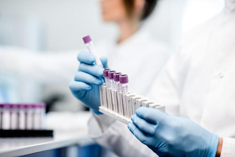 В Україні зафіксовано 1,5 тис нових хворих коронавірусом