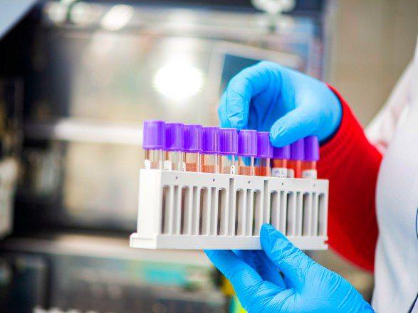 У Херсонській області за добу – одна смерть і 31 новий випадок COVID-19