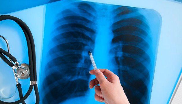 Жителям Херсонщини радять захиститися від смертельної хвороби