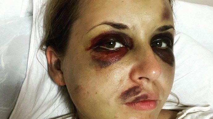"""У СІЗО помер чоловік, який побив та хотів зґвалтувати жінку в поїзді """"Маріуполь – Київ"""""""